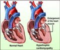 Dilated Cardiomyopathy - Causes - Symptoms - Signs - Diagnosis - Treatment