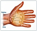 Colle�s Fracture - Treatment and Prognosis
