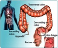 Colon Polyps - About