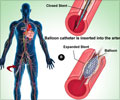 Coronary Balloon Angioplasty - About