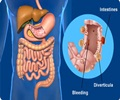 Diverticulosis and Diverticulitis