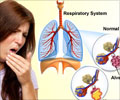 Hemoptysis Symptom Evaluation