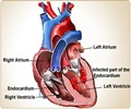 Infective Endocarditis - Types and Causes
