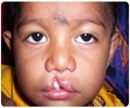 Multifactorial Birth Defects - A Cleft Lip And Cleft Palate