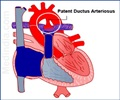 Patent Ductus Arteriosus - Intervention-Catheter device