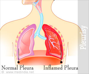Pleural Effusion - About