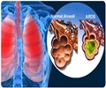 Respiratory Distress Syndrome - About