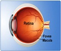 Retinal Detachment - Types