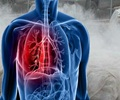 Silicosis - Symptoms and Signs