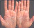 Skin Disease/ Dermatology - Inflammatory skin disorders