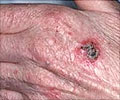 Squamous Cell Cancer of the Skin