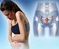 Stress Incontinence - Management