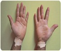 Vitiligo - About