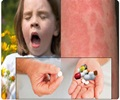 Over-the-Counter (OTC) Antihistamines Drugs for Allergy