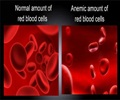 Anemia / Hemoglobin - Frequently Asked Questions