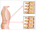 Ankylosing Spondylitis - How can Ankylosing Spondylitis be Treated?