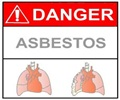 Asbestosis - Complications of asbestosis