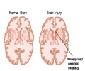 Head Injury / Brain Injury - Types