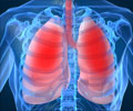 Lung Cancer - About