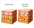 Cellulitis - About