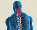 Cervical Spondylosis - What are the Causes of Cervical Spondylosis?
