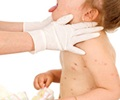 Chicken Pox - Symptoms of Chickenpox