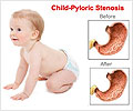 Pediatric Pyloric Stenosis