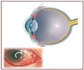 Conjunctivitis | Pink Eye - Treatment
