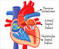 What you Ought to Know About Cyanotic Heart Disease