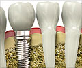 Dental Implants - Classical - Osseointegrated - Surgeries