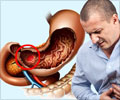 Digestive Tract Ulcers Symptom Evaluation