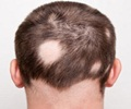 Symptom Evaluation of Hair Loss
