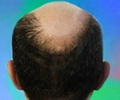 Hair Loss - Prevention