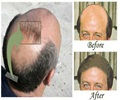 Men - Hair Replacement