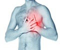 Heart Attack - Signs & Symptoms
