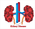 Prevention of Kidney Disease