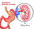 Why are Kidney Stones Common after Bariatric Surgery?