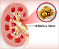 Kidney Stone Prevention
