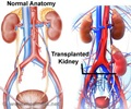 Kidney Transplantation - Types of Donors