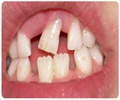 Loose Teeth - What are the Causes of Loose Teeth?