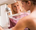 Breast Lumps-Screening - Mammography
