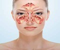 Maxillary Sinus Cancer - FAQs