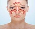 Maxillary Sinus Cancer