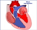 Causes of Mitral Regurgitation
