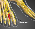 Morton´s Neuroma