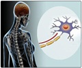 Multiple Sclerosis Treatment and Modify