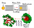 Oncology Drug Delivery Systems