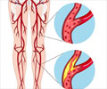Peripheral Artery Disease (PAD)