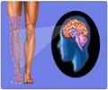 Phantom Limb Syndrome