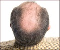 Hair Loss - Balding Premature